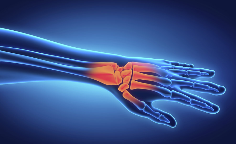 hand-injury-xray-pain.jpg