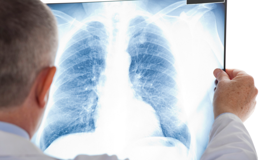 Lung-xray-cancer-asthma-asbestos-900