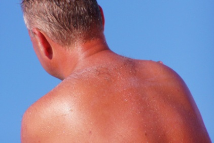 One in five Americans will get skin cancer | 2013-05-20 | ISHN