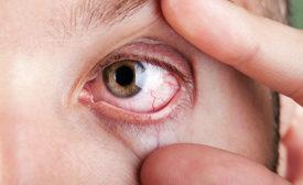 Eye protection against irritants