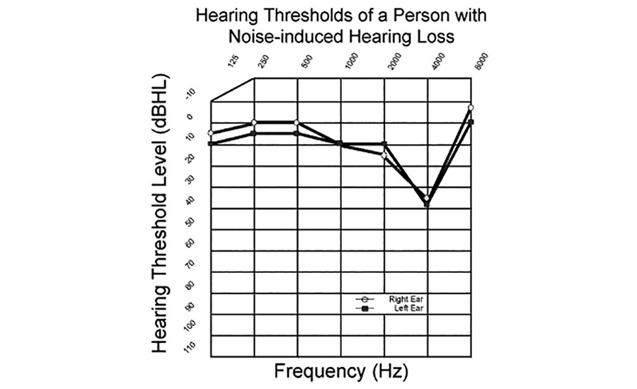 acoustic shock can harm hearing & incur costs